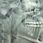 Какая кость в человеческом теле самая твердая ?