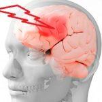 Что защищает головной мозг ?