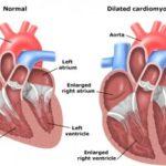 Какова функция легочной артерии ?