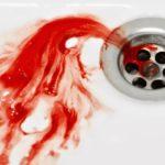 Почему кровь становится черной?